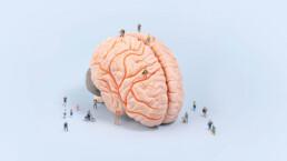 Case-ALZ-brain