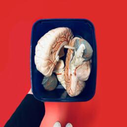 Case-ALZ-brainbox